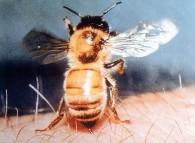 Puntura d'ape su una persona